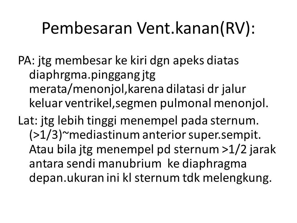 Pembesaran Vent.kanan(RV): PA: jtg membesar ke kiri dgn apeks diatas diaphrgma.pinggang jtg merata/menonjol,karena dilatasi dr jalur keluar ventrikel,