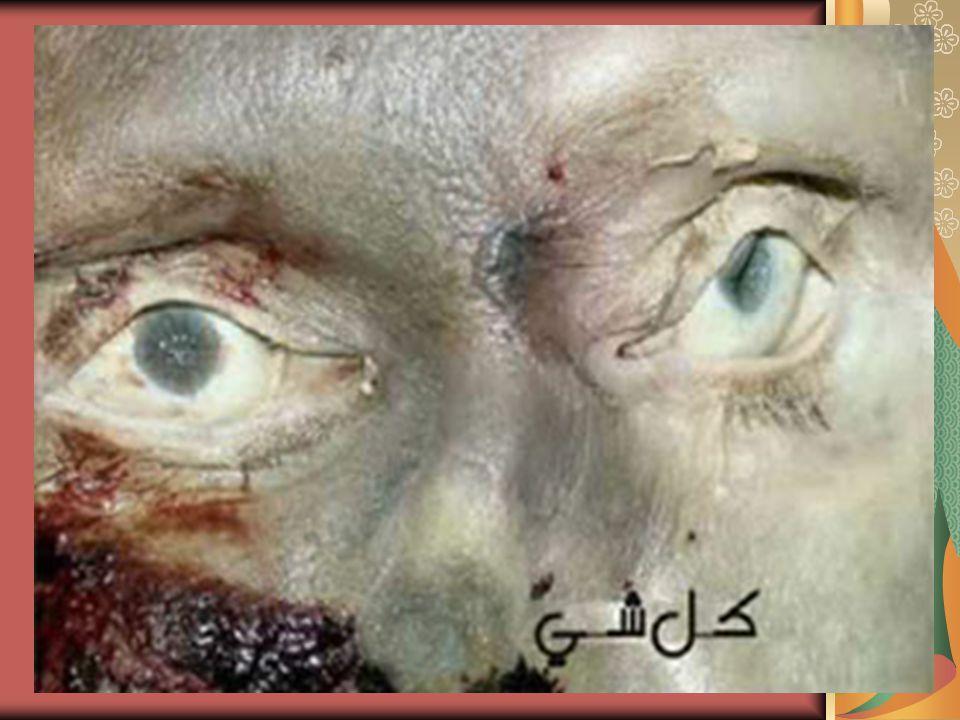 All His body and face were full of bruise.Seluruh badan dan mukanya memar.