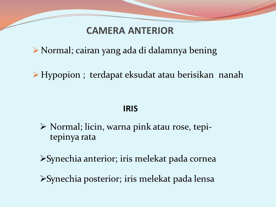 CAMERA ANTERIOR  Normal; cairan yang ada di dalamnya bening  Hypopion ; terdapat eksudat atau berisikan nanah IRIS  Normal; licin, warna pink atau rose, tepi- tepinya rata  Synechia anterior; iris melekat pada cornea  Synechia posterior; iris melekat pada lensa