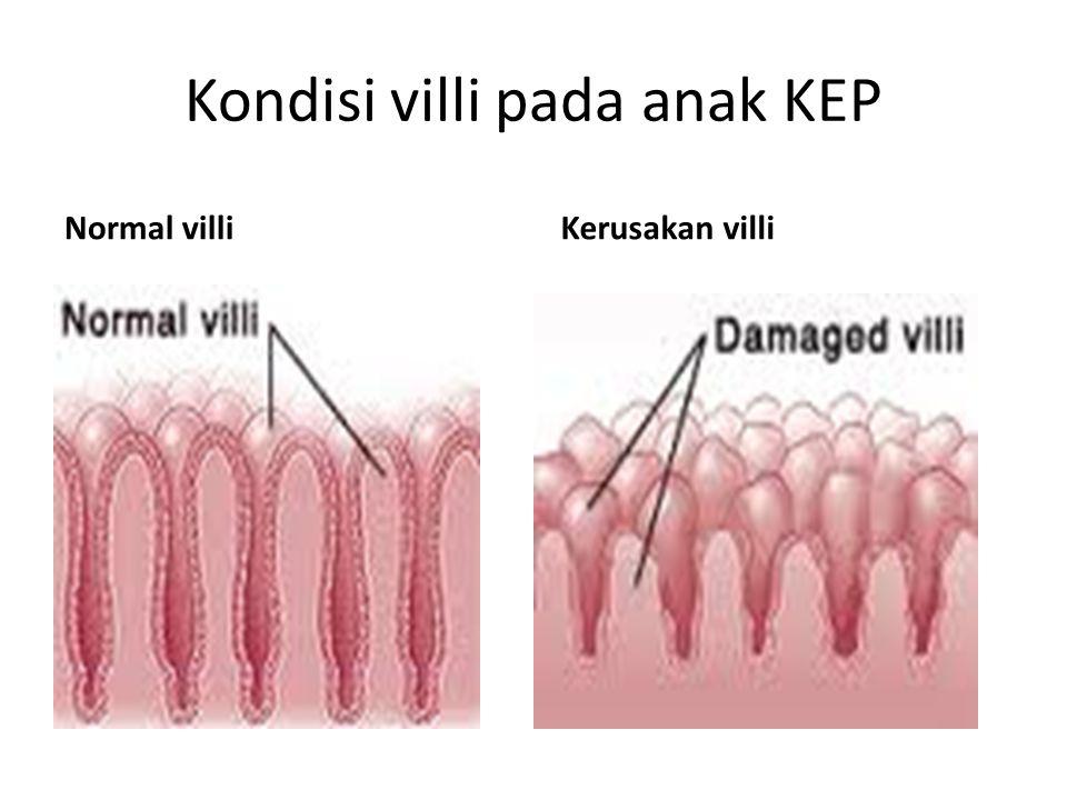 Kondisi villi pada anak KEP Normal villi Kerusakan villi