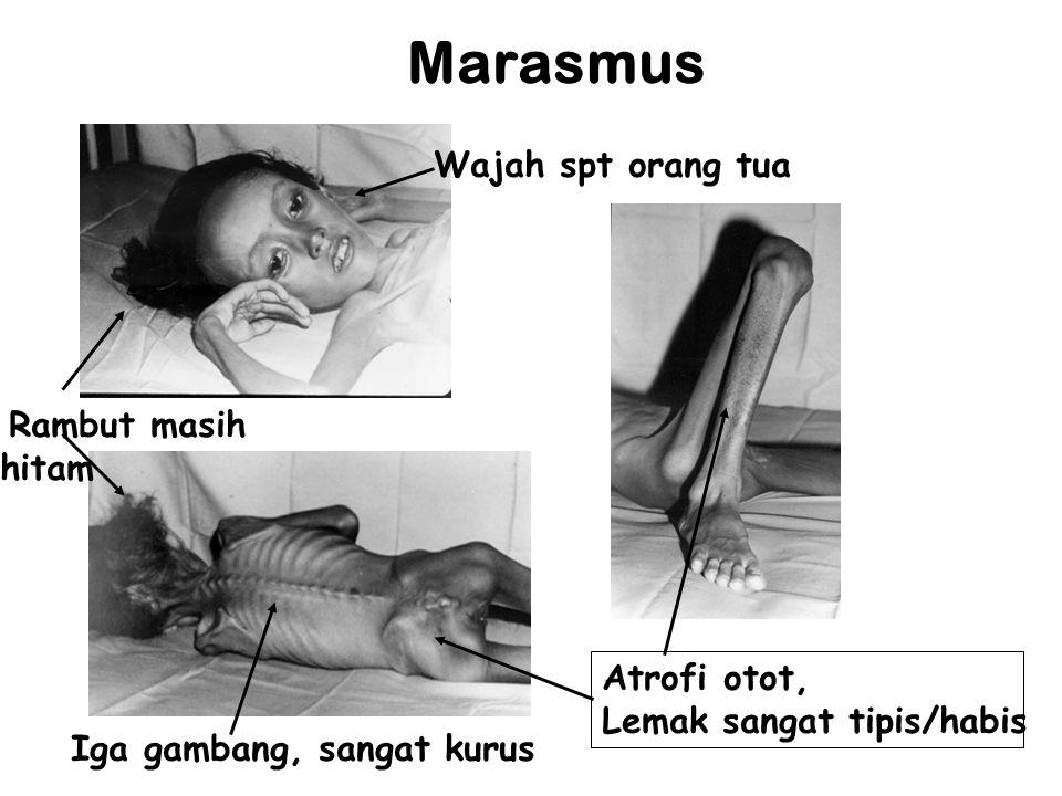 Marasmus Wajah spt orang tua Rambut masih hitam Iga gambang, sangat kurus Atrofi otot, Lemak sangat tipis/habis