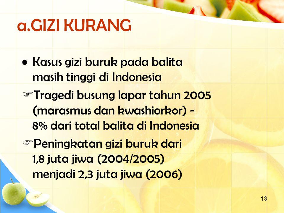13 a.GIZI KURANG Kasus gizi buruk pada balita masih tinggi di Indonesia  Tragedi busung lapar tahun 2005 (marasmus dan kwashiorkor) - 8% dari total balita di Indonesia  Peningkatan gizi buruk dari 1,8 juta jiwa (2004/2005) menjadi 2,3 juta jiwa (2006)