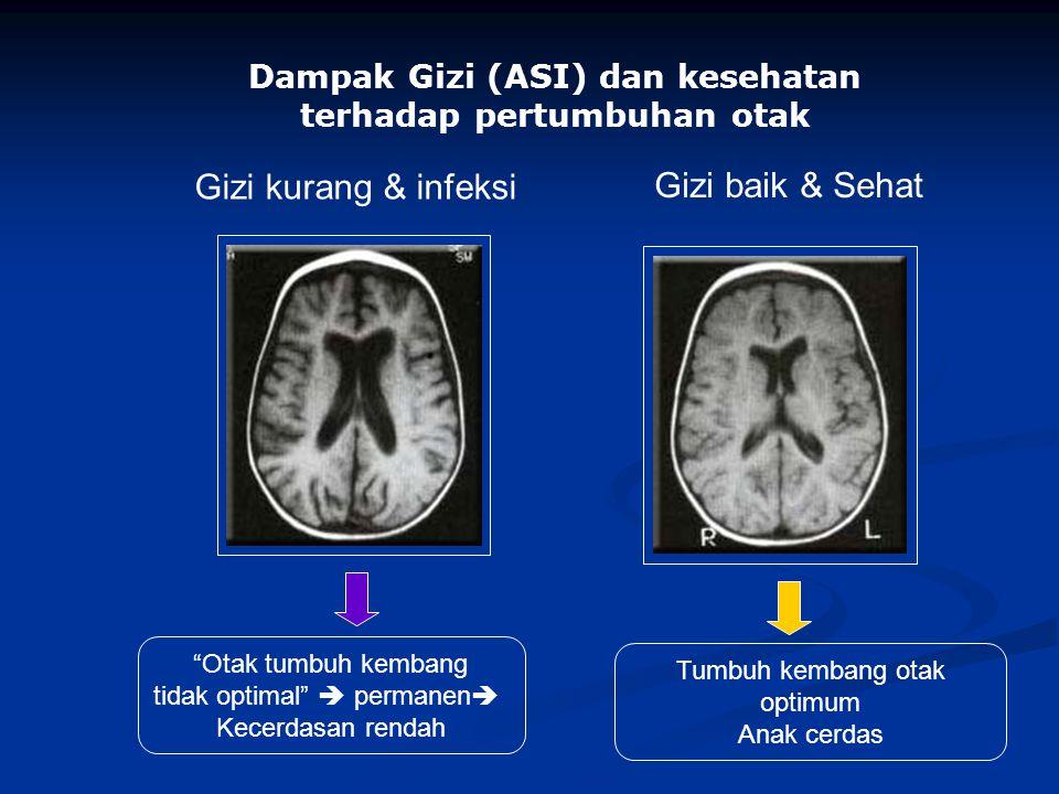 Otak tumbuh kembang tidak optimal  permanen  Kecerdasan rendah Tumbuh kembang otak optimum Anak cerdas Dampak Gizi (ASI) dan kesehatan terhadap pertumbuhan otak Gizi kurang & infeksi Gizi baik & Sehat