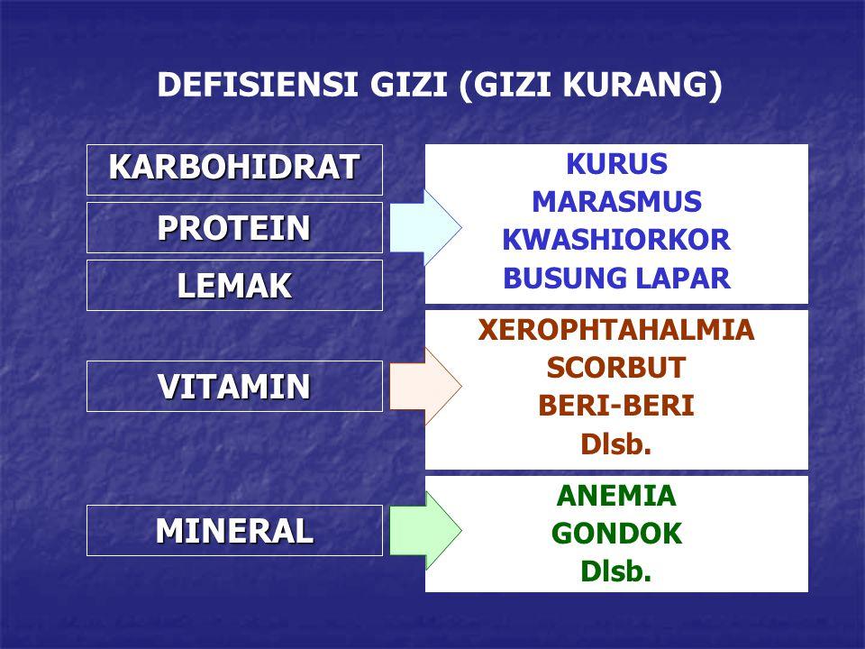 DEFISIENSI GIZI (GIZI KURANG) KARBOHIDRAT KURUS MARASMUS KWASHIORKOR BUSUNG LAPAR PROTEIN LEMAK VITAMIN MINERAL XEROPHTAHALMIA SCORBUT BERI-BERI Dlsb.