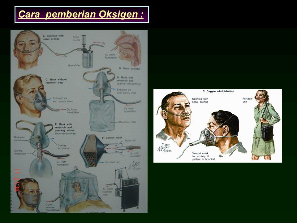 Cara pemberian Oksigen :