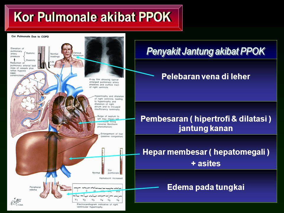 Pelebaran vena di leher Pembesaran ( hipertrofi & dilatasi ) jantung kanan Hepar membesar ( hepatomegali ) + asites Edema pada tungkai