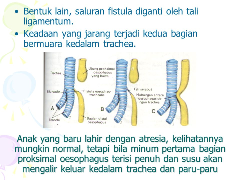 Lambung Pertumbuhan lambung mulai pada minggu ke-4 sebagai suatu pelebaran usus depan yang berbentuk kumparan.