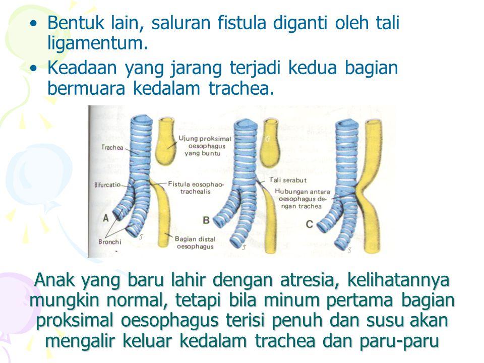 Perkembangan Usus Sederhana Tengah (mid gut) Perkembangan usus tengah ditandai oleh cepat memanjangnya usus dan mesenteriumnya, sehingga terbentuk jerat usus primer.