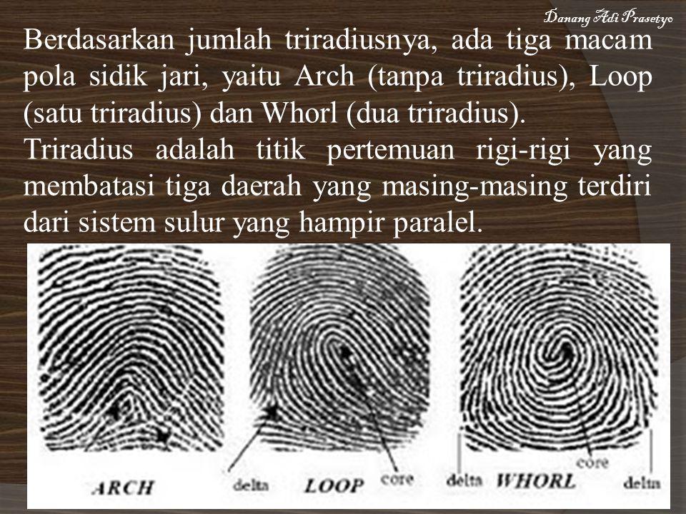 Berdasarkan jumlah triradiusnya, ada tiga macam pola sidik jari, yaitu Arch (tanpa triradius), Loop (satu triradius) dan Whorl (dua triradius).