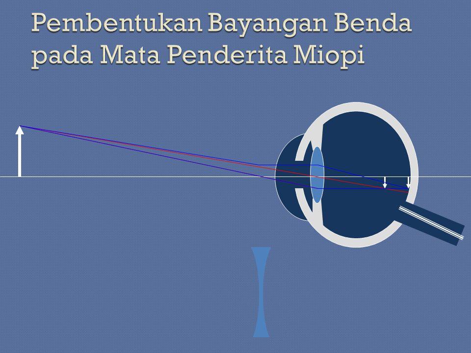 Rabun dekat adalah kelainan mata karena bayangan benda-benda yang dekat jatuh di belakang retina.