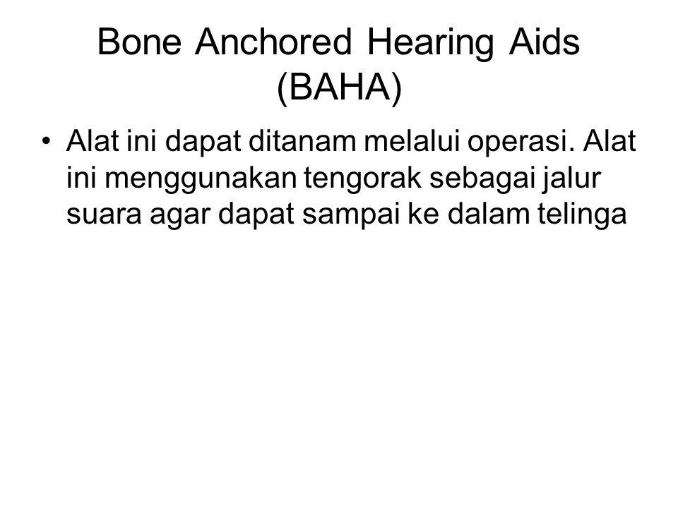 Bone Anchored Hearing Aids (BAHA) Alat ini dapat ditanam melalui operasi. Alat ini menggunakan tengorak sebagai jalur suara agar dapat sampai ke dalam