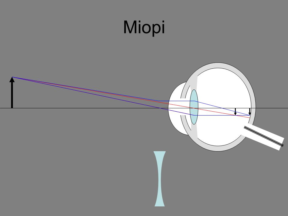 Persamaan kamera Kamera memiliki persamaan sama dengan lensa cembung, yaitu: = + 1 1 1 f s s' dan M = = s' h' s h Ket.