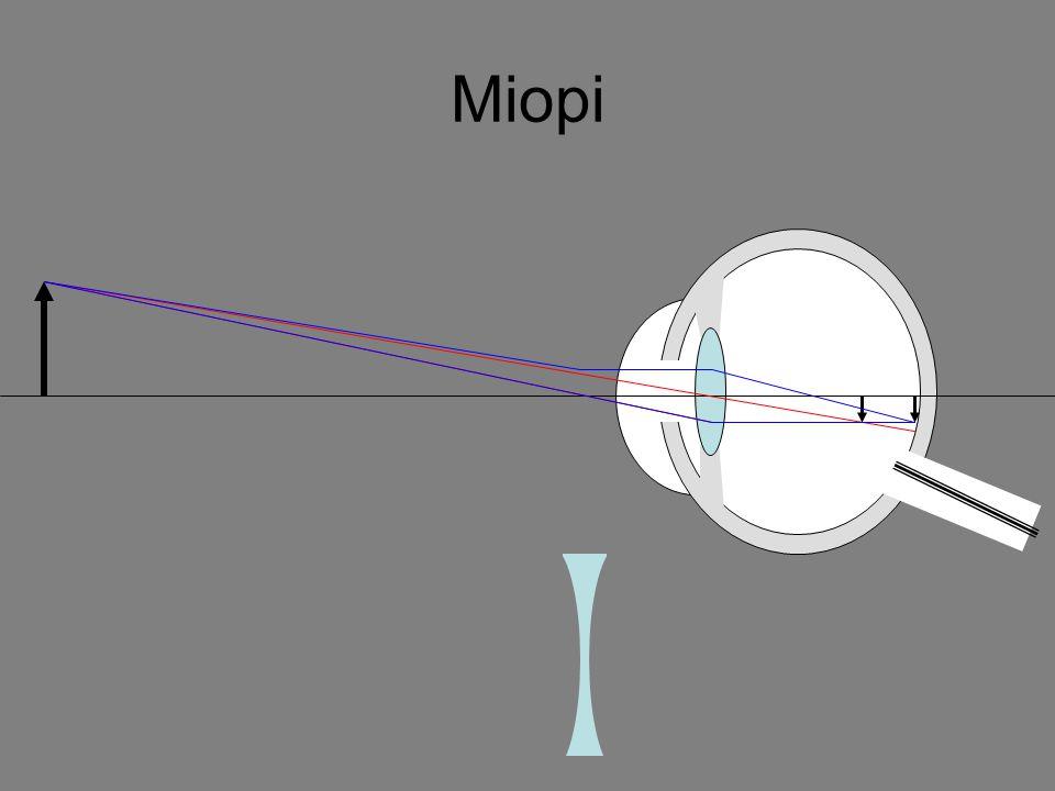 Cacat Mata Rabun dekat (hipermetropi) Rabun dekat adalah kelainan mata karena bayangan benda-benda yang dekat jatuh di belakang retina.