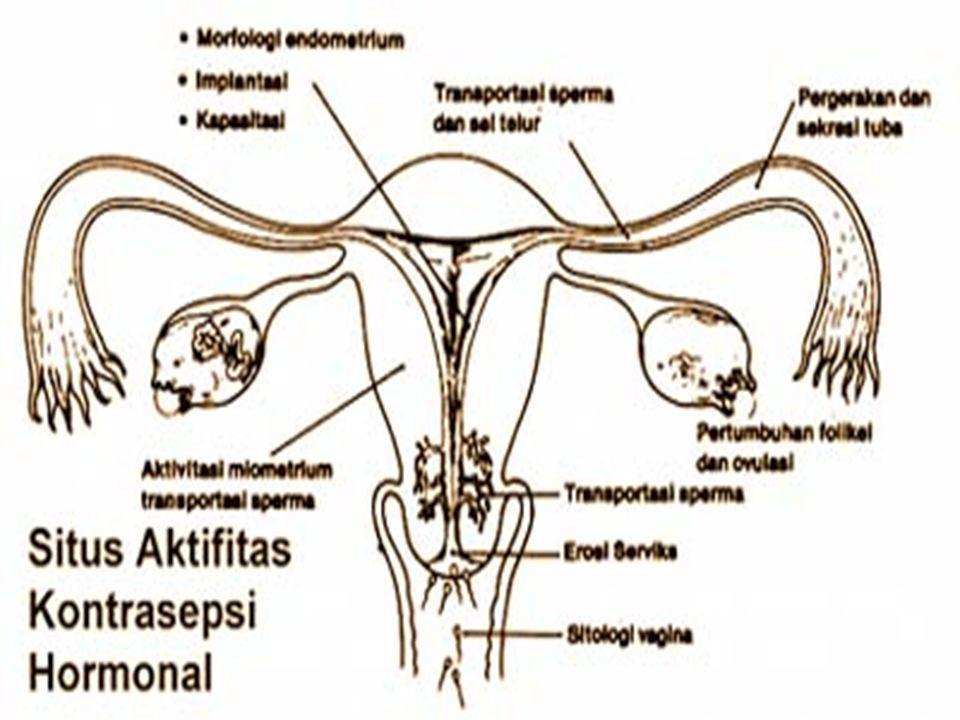 Spiral/ IUD/ AKDR… Efek sampingnya.