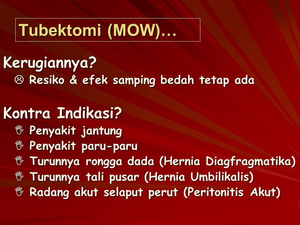 Tubektomi (MOW)… Tempat pelayanannya.