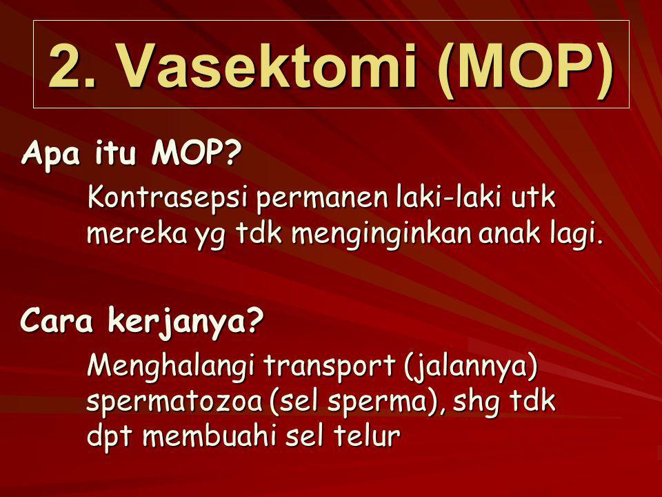 2. Vasektomi (MOP) Apa itu MOP? Kontrasepsi permanen laki-laki utk mereka yg tdk menginginkan anak lagi. Cara kerjanya? Menghalangi transport (jalanny