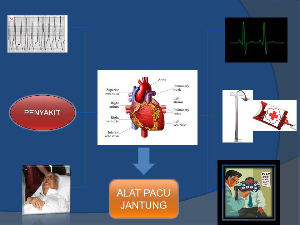 Pemasangan Alat Pacu Jantung Epicardial pacing  Digunakan anak-anak.