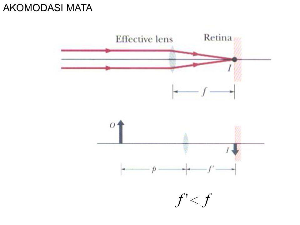 Contoh Soal 6.1 Dalam keadaan relaks, jarak fokus lensa mata adalah 2,5 cm.