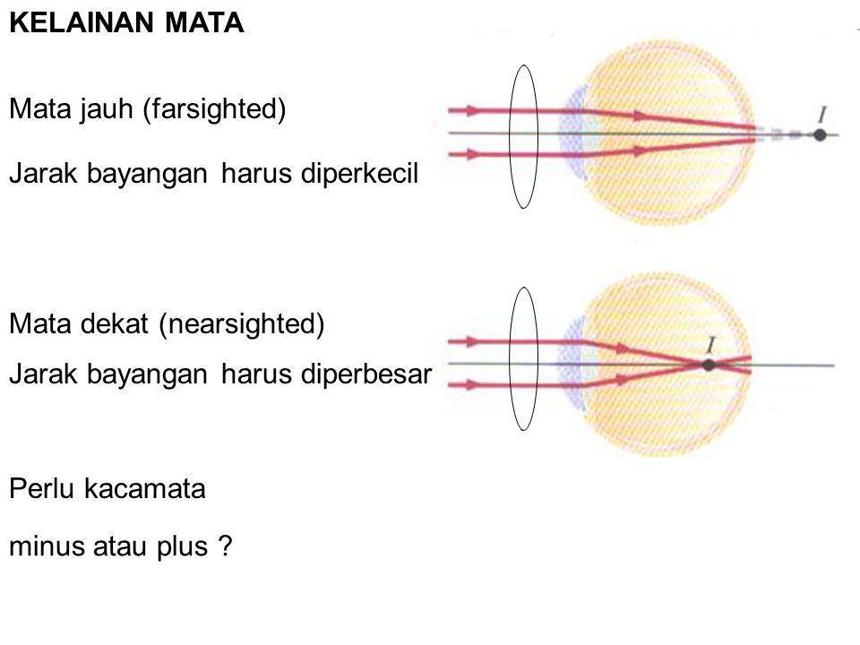 KELAINAN MATA Mata jauh (farsighted) Mata dekat (nearsighted) Perlu kacamata Jarak bayangan harus diperkecil Jarak bayangan harus diperbesar minus atau plus ?