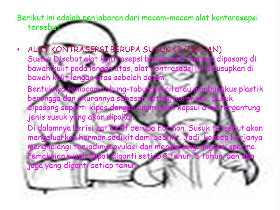 Berikut ini adalah penjabaran dari macam-macam alat kontarasepsi tersebut. ALAT KONTRASEPSI BERUPA SUSUK KB (IMPLAN) Susuk: Disebut alat kontrasepsi b