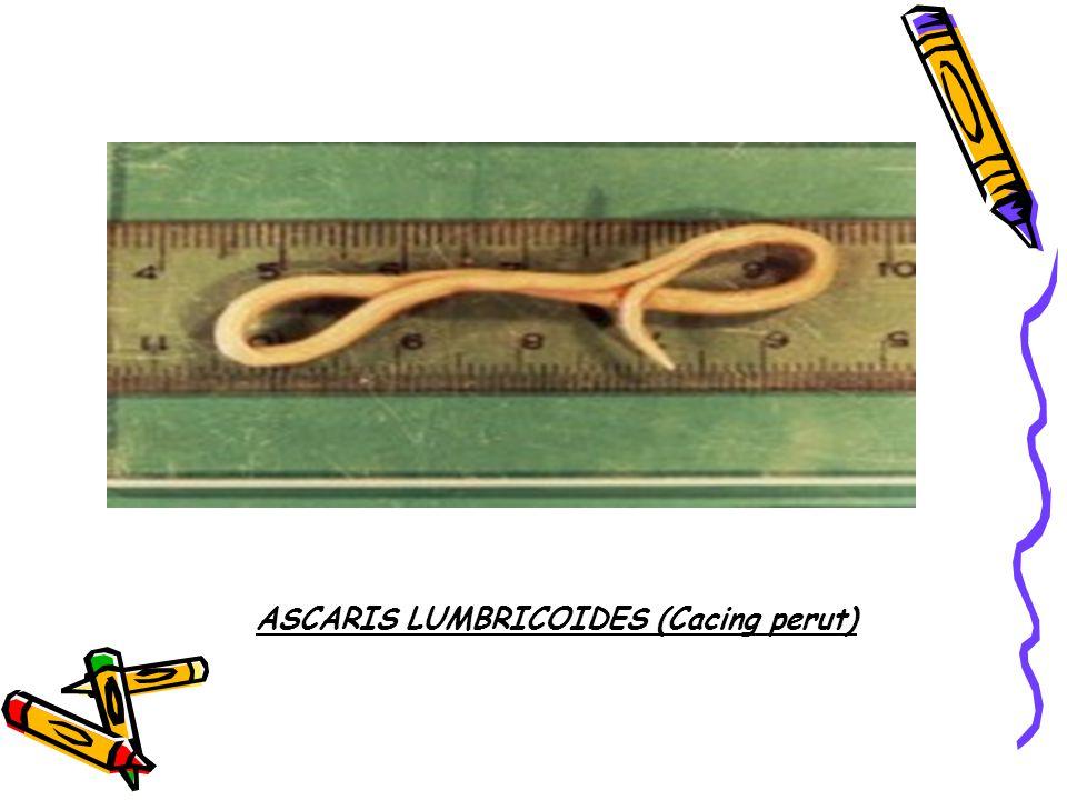 Cacing ini umumnya hidup parasit didalam usus halus Manusia sehingga sering kali disebut cacing perut.
