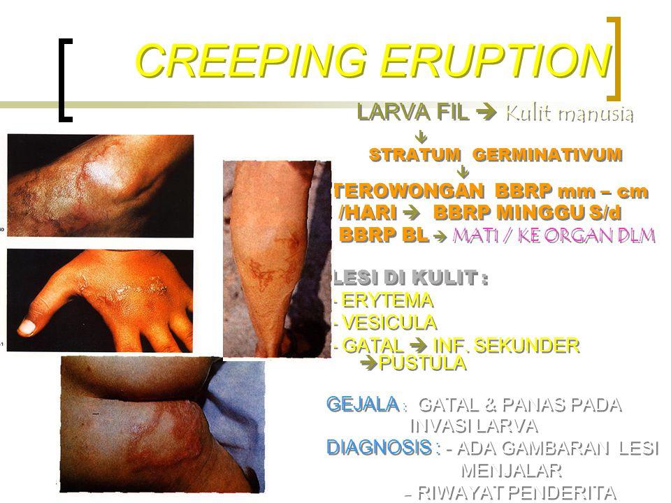 CREEPING ERUPTION LARVA FIL  Kulit manusia  STRATUM GERMINATIVUM  TEROWONGAN BBRP mm – cm /HARI  BBRP MINGGU S/d BBRP BL  MATI / KE ORGAN DLM LES