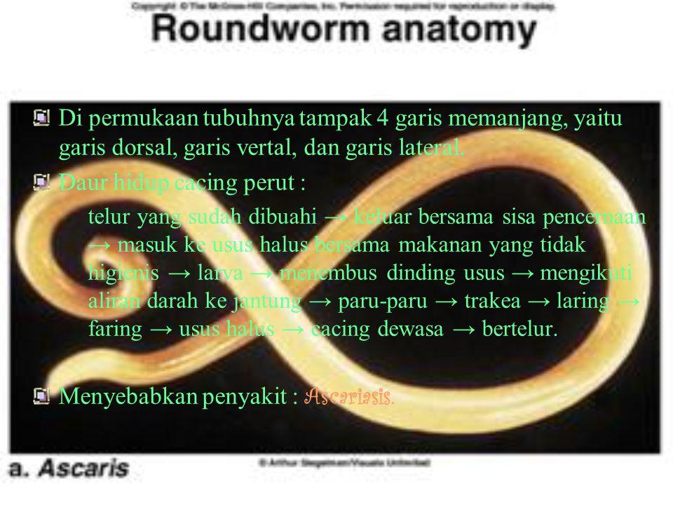 CoNtOh AnGgOtA nEmAtHeLmInThEs : A.Ascaris lumbricoides ( cacing perut ) Parasit di dalam usus halus manusia. Ukuran cacing betina :20-30 cm, diameter