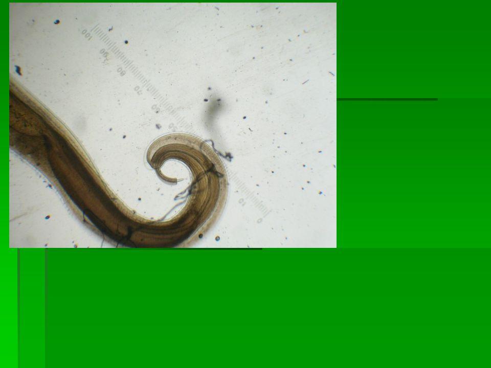 Morfologi dan daur hidup  Cacing betina : panjang ± 5 cm, jantan 4 cm  Bagian anterior : langsing seperti cambuk, ±3/5 panjang tubuh  Bagian poster