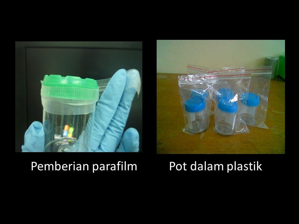 Menempatkan pot dahak pada kotak plastik