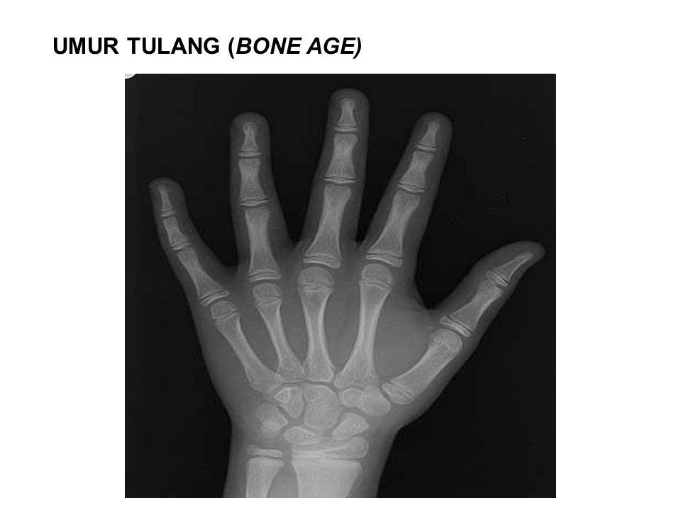 UMUR TULANG (BONE AGE)
