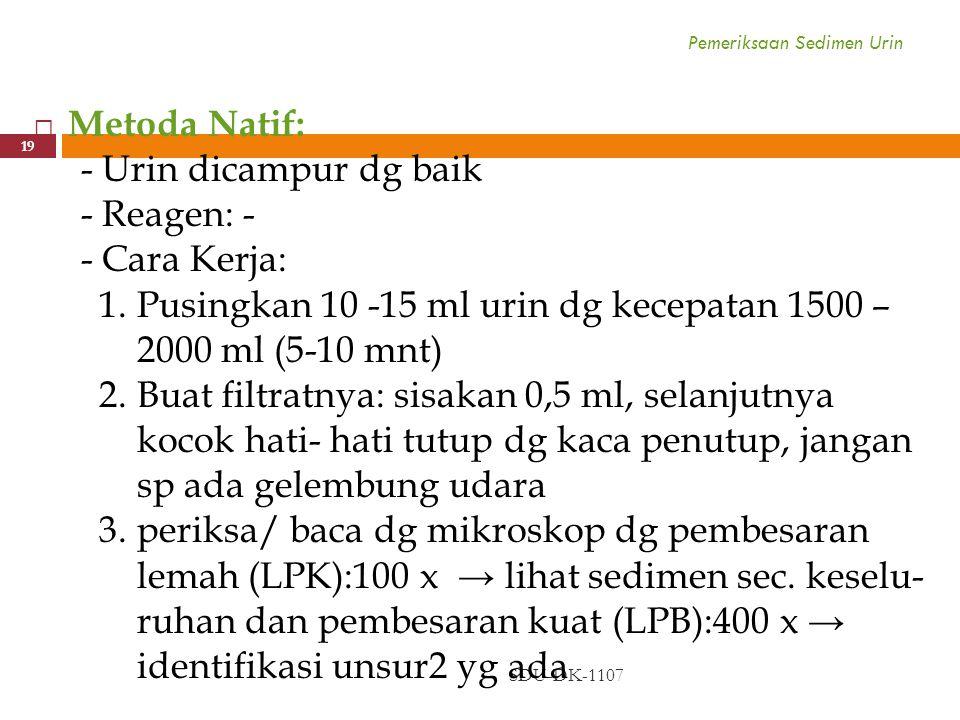Pemeriksaan Sedimen Urin SDU-DK-1107 19  Metoda Natif: - Urin dicampur dg baik - Reagen: - - Cara Kerja: 1. Pusingkan 10 -15 ml urin dg kecepatan 150