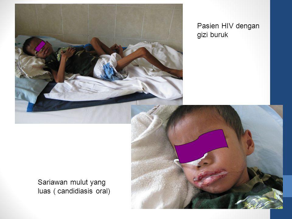 Pasien HIV dengan gizi buruk Sariawan mulut yang luas ( candidiasis oral)