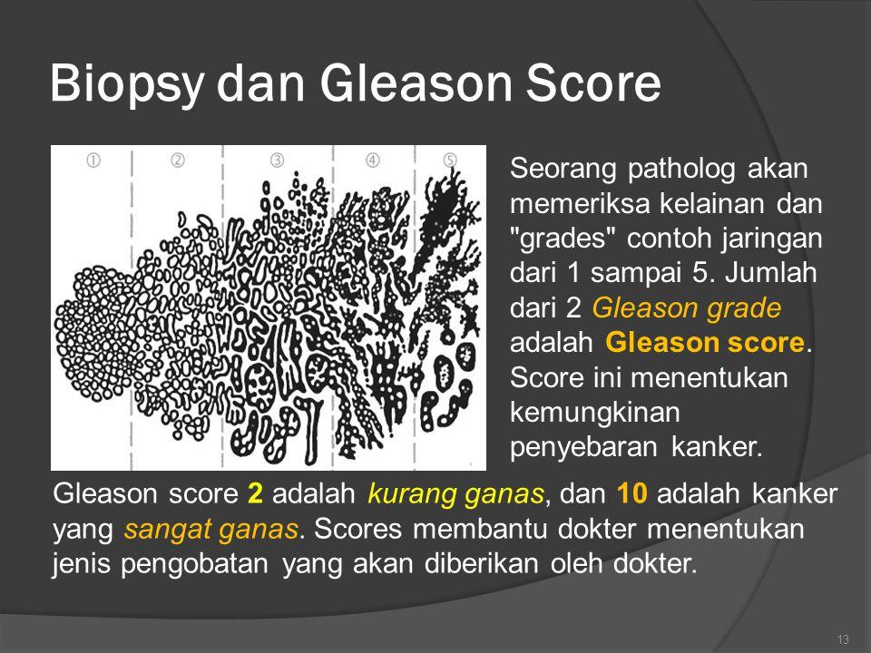 Biopsy dan Gleason Score Seorang patholog akan memeriksa kelainan dan grades contoh jaringan dari 1 sampai 5.