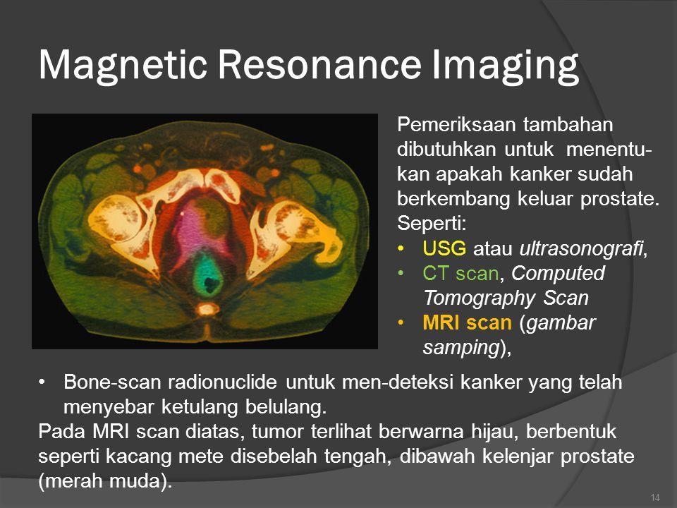 Magnetic Resonance Imaging Pemeriksaan tambahan dibutuhkan untuk menentu- kan apakah kanker sudah berkembang keluar prostate.