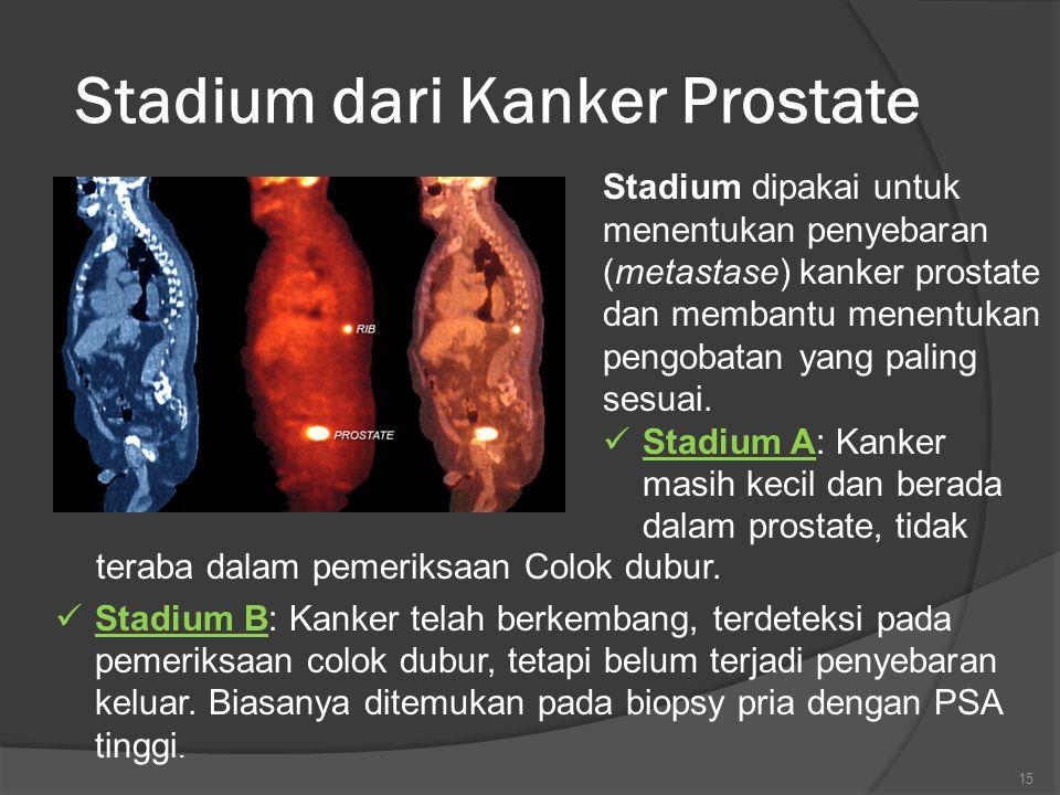Stadium dari Kanker Prostate Stadium dipakai untuk menentukan penyebaran (metastase) kanker prostate dan membantu menentukan pengobatan yang paling sesuai.