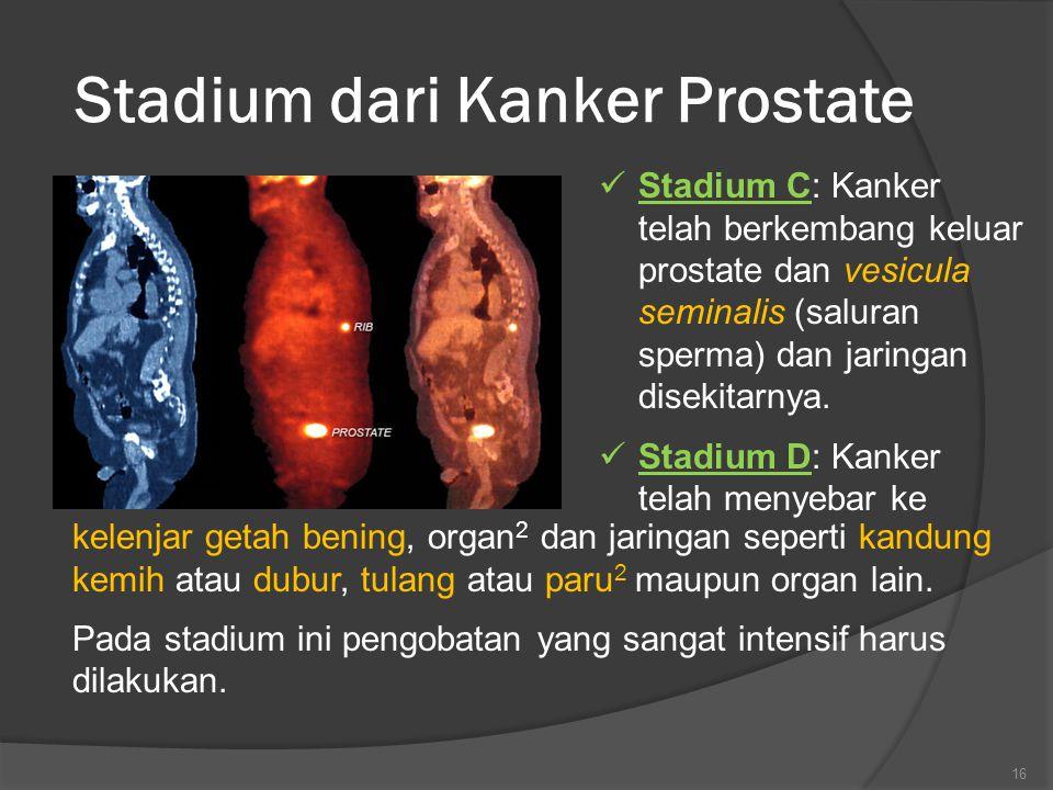 Stadium dari Kanker Prostate Stadium C: Kanker telah berkembang keluar prostate dan vesicula seminalis (saluran sperma) dan jaringan disekitarnya.
