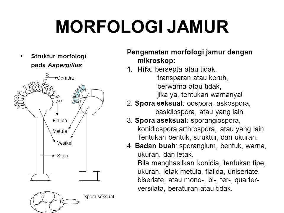 MORFOLOGI JAMUR Struktur morfologi pada Aspergillus Conidia Pengamatan morfologi jamur dengan mikroskop: 1.Hifa: bersepta atau tidak, transparan atau keruh, berwarna atau tidak, jika ya, tentukan warnanya.