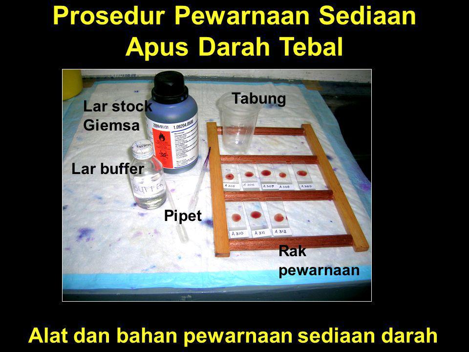 Prosedur Pewarnaan Sediaan Apus Darah Tebal Alat dan bahan pewarnaan sediaan darah Lar stock Giemsa Lar buffer Pipet Tabung Rak pewarnaan