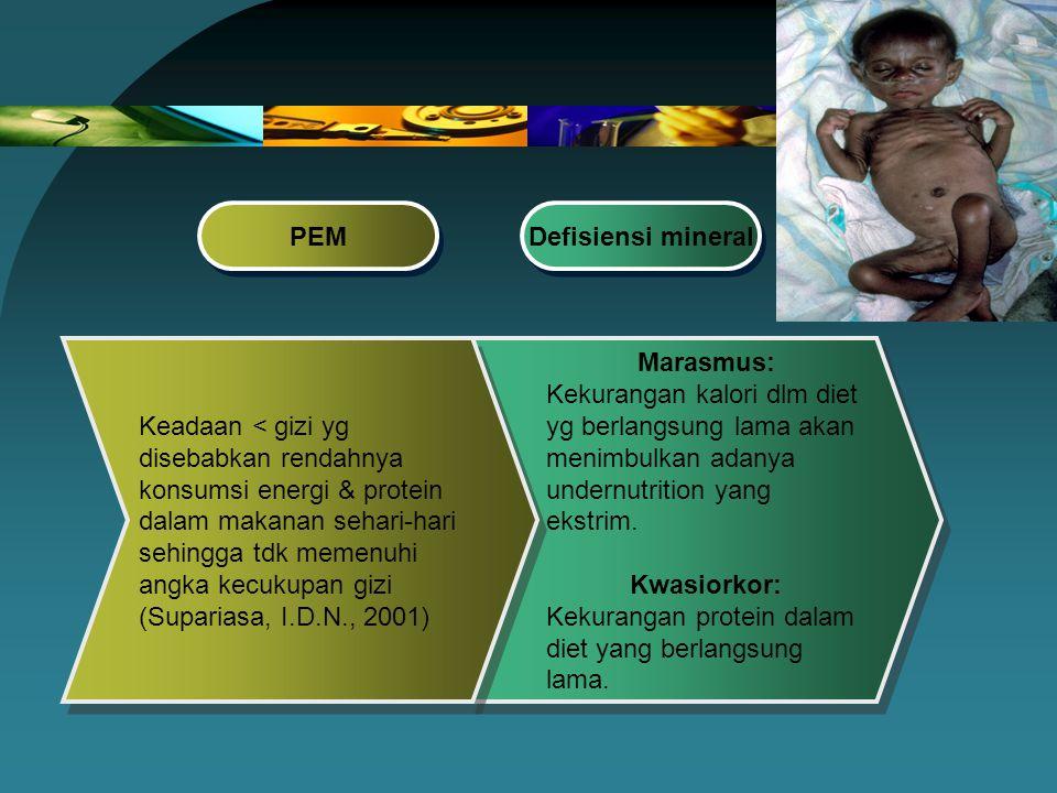 Marasmus: Kekurangan kalori dlm diet yg berlangsung lama akan menimbulkan adanya undernutrition yang ekstrim. Kwasiorkor: Kekurangan protein dalam die