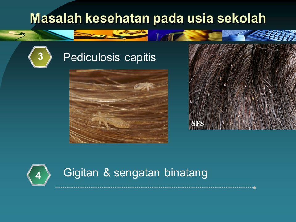Masalah kesehatan pada usia sekolah Gigitan & sengatan binatang 3 4 Pediculosis capitis