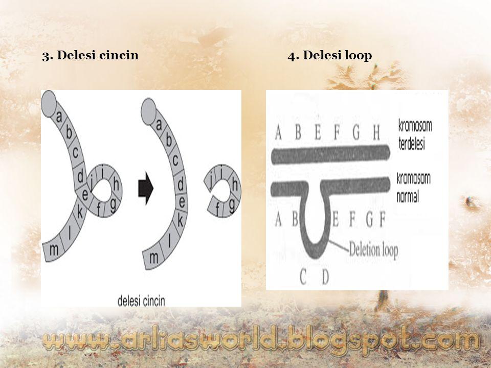 3. Delesi cincin4. Delesi loop