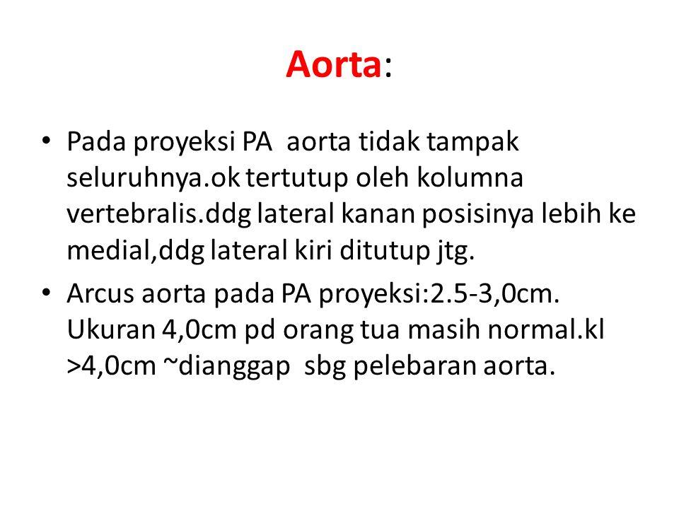 Aorta: Pada proyeksi PA aorta tidak tampak seluruhnya.ok tertutup oleh kolumna vertebralis.ddg lateral kanan posisinya lebih ke medial,ddg lateral kir
