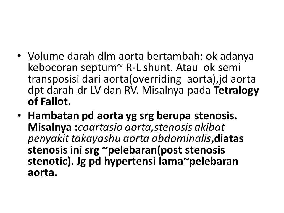 Volume darah dlm aorta bertambah: ok adanya kebocoran septum~ R-L shunt. Atau ok semi transposisi dari aorta(overriding aorta),jd aorta dpt darah dr L