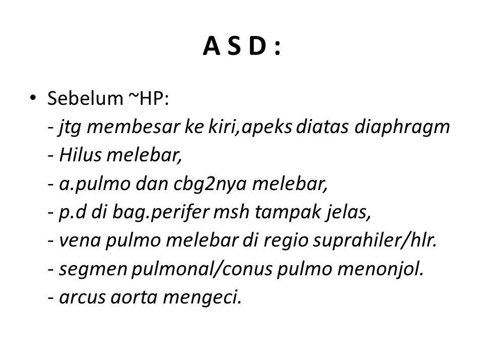 A S D : Sebelum ~HP: - jtg membesar ke kiri,apeks diatas diaphragm - Hilus melebar, - a.pulmo dan cbg2nya melebar, - p.d di bag.perifer msh tampak jelas, - vena pulmo melebar di regio suprahiler/hlr.