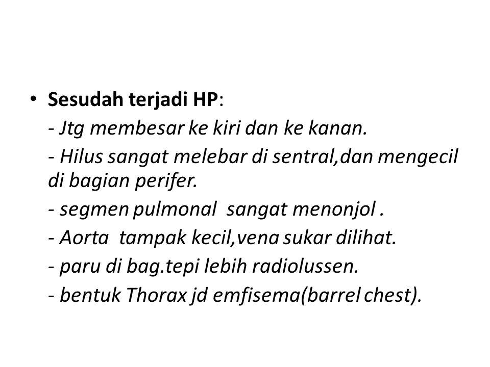Sesudah terjadi HP: - Jtg membesar ke kiri dan ke kanan. - Hilus sangat melebar di sentral,dan mengecil di bagian perifer. - segmen pulmonal sangat me