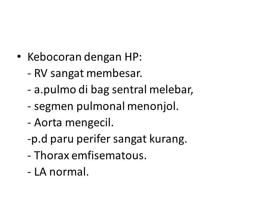 Kebocoran dengan HP: - RV sangat membesar. - a.pulmo di bag sentral melebar, - segmen pulmonal menonjol. - Aorta mengecil. -p.d paru perifer sangat ku