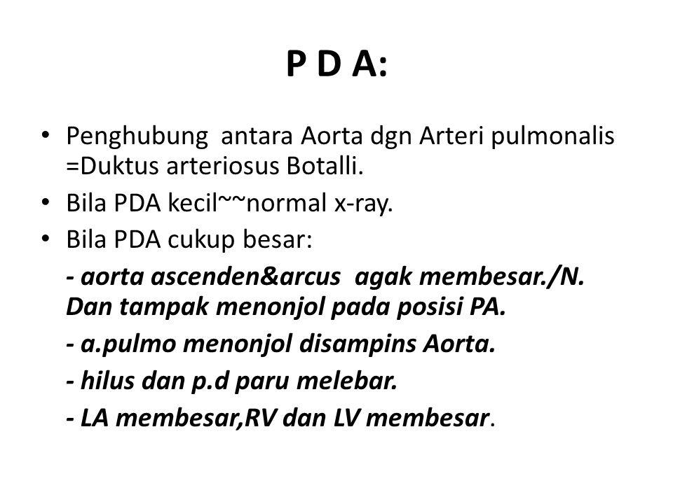 P D A: Penghubung antara Aorta dgn Arteri pulmonalis =Duktus arteriosus Botalli. Bila PDA kecil~~normal x-ray. Bila PDA cukup besar: - aorta ascenden&