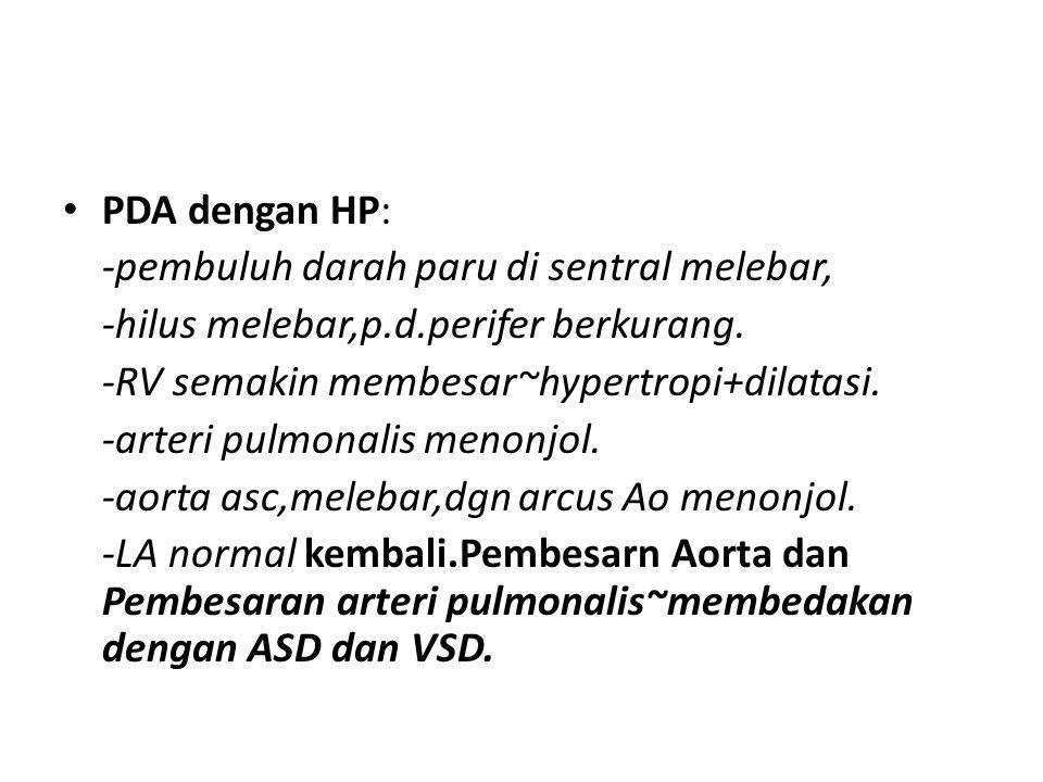 PDA dengan HP: -pembuluh darah paru di sentral melebar, -hilus melebar,p.d.perifer berkurang. -RV semakin membesar~hypertropi+dilatasi. -arteri pulmon
