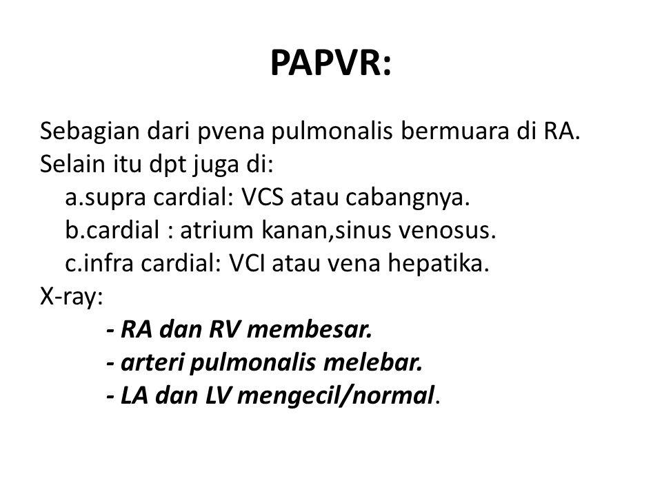 PAPVR: Sebagian dari pvena pulmonalis bermuara di RA. Selain itu dpt juga di: a.supra cardial: VCS atau cabangnya. b.cardial : atrium kanan,sinus veno