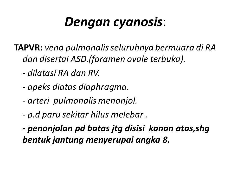 Dengan cyanosis: TAPVR: vena pulmonalis seluruhnya bermuara di RA dan disertai ASD.(foramen ovale terbuka). - dilatasi RA dan RV. - apeks diatas diaph